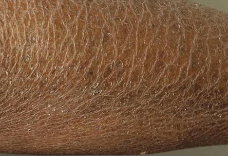 Ichthyosis dark skin