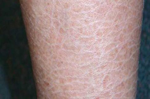 Ichthyosis white skin